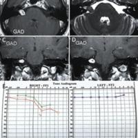 Fresado de la fosa subarcuata para liberar la arteria cerebelosa anteroinferior en una cirugía de un schwannoma vestibular