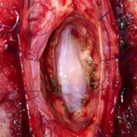 Figura 4: Imagen intraoperatoria luego de la resección total del QNE. Los puntos piales permiten una buena exposición evitando la tracción manual. Se observa la aracnoides ventral quedando la médula separada en 2 partes.<br />