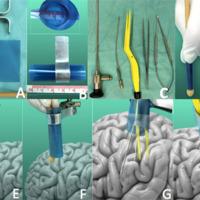 Cirugía micro-endo-asistida para patología intraventricular: abordaje transtubular expansible