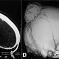 Figura 1: TC de cerebro con contraste donde se aprecia imagen heterogénea ubicada en el vertex, con componente intra y extracraneal, la cual realza tras la administración de iodo, con efecto osteolitico en cráneo e importante efecto de masa biparietal y edema perilesional difuso.