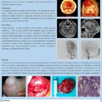 Metástasis craneal de carcinoma folicular de tiroides: a propósito de un caso