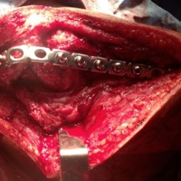 Figura 1A: Foto quirúrgica de la placa de artrodesis colocada.