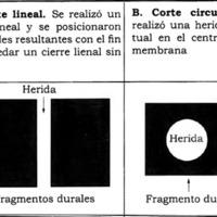 Un Nuevo Modelo de la Cicatrización de la Duramadre Humana: Definiendo las Bases Biológicas del Cierre Dural<br /><br /> Premio Póster 43° Congreso Argentino de Neurocirugía