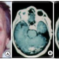 Fig. 1. A. Foto de ingreso de la paciente. B y C. IRM de cerebro con gadolinio.
