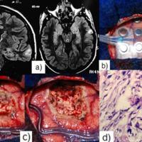 Figura 1: Paciente adulto con epilepsia parcial refractaria por tumor temporo-lateral izquierdo. a. RNM que evidencia el tumor; b. Grilla sobre la superficie cerebral, fronto-temporal izquierda; c. Cerebro post exéresis, pre y post ampliación de resección guiada por electrocorticografía en la parte postero-inferior del lóbulo temporal izquierdo; d. Histología tumoral, un xantoastrocitoma pleomorfico.