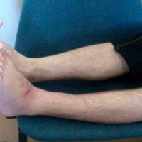 Figura 4: Postquirúrgico mediato, 45 días POP, caso #1.