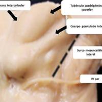 Figura 1: Preparado anatómico mostrando distintas ZES al mesencéfalo, a través del surco mesencefálico lateral, surco intercolicular, o infracolicular a través del velo medular superior (Tomado de Rhoton's Collection).