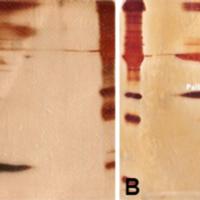 ¿Es posible diferenciar líquido cefalorraquídeo de otras secreciones? Utilidad de la proteína Beta Trace como biomarcador de fístulas de líquido