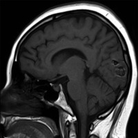 Metástasis Cerebral de Mixoma Cardíaco<br /><br /> Reporte de un Caso y Revisión Literaria