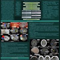 Inclusión de técnicas imagenológicas en la planificación<br /><br /> neuroquirúrgica: integración de equipos multidisciplinarios