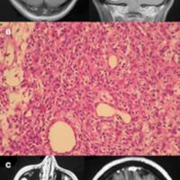 Tratamiento quirúrgico de los hemangioblastomas del sistema nervioso central<br /><br />