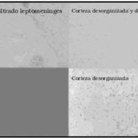 Fig 1. Anatomía patológica. Asociación de EMT, ganglioglioma y alteración cortical (triple patología).