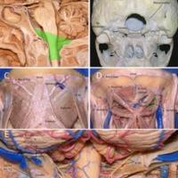 Meningiomas del foramen magno: <br /><br /> reporte de 12 casos y revisión de la literatura<br /><br />