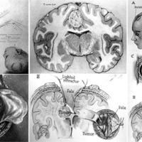 Abordaje interhemisferico contralateral transfalciano, subfalciano y transcalloso