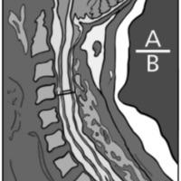 Fig. 1. Dibujo que muestra como se toma el índice de Vaquero. A: diámetro de la parte más dilatada de la cavidad siringomiélica. B: diámetro del canal en el mismo nivel.
