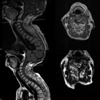 Figura 1: Caso I. Meningioma IDEM cervical. En la fila superior a izquierda imagen de RM corte sagital T1 con contraste y a derecha corte axial con contraste evidenciando meningioma cervical ántero-lateral derecho a nivel tercera vértebra cervical. En la fila inferior cortes sagital (izquierda) y axial (derecha) con contraste postoperatorios evidenciando remoción tumoral completa.