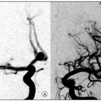 Fig. 1. Aneurisma sacular del complejo comunicante anterior (caso 1). A. DSA, carótida derecha, se visualiza un aneurisma del complejo comunicante anterior, ramo A1 de la cerebral anterior dominante. B. DSA: carótida izquierda, segmento A1 de la cerebral anterior hipoplásica. El mayor flujo derecho podría ser la causa de la formación del aneurisma.
