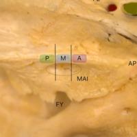 Figura 2: Representación de la posición más prominente del tubérculo suprameatal anterior, medio y posterior en relación del conducto auditivo interno. P: Posición de tubérculo suprameatal posterior. M: Posición de tubérculo suprameatal medio. A: Posición de tubérculo suprameatal anterior. MAI: Meato acústico interno. FO: Foramen oval. FE: Foramen espinoso. FY: foramen yugular. AP: Ápex petroso.