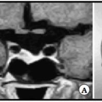 Pseudoaneurisma carotídeo secundario a cirugía transesfenoidal, tratado exitosamente mediante oclusión carotídea con balón de Fogarty