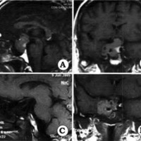 Fig. 1. A y B: Cortes sagital y coronal de IRM en secuencia Ti con contraste que muestra un macroadenoma de hipófisis con realce heterogéneo e invasión del seno cavernoso derecho. C y D. Cortes sagital y coronal de la IRM postoperatoria en la misma secuencia, donde se observa un remanente tumoral en el seno cavernoso derecho