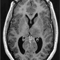 Neurocitoma Extraventicular Atípico con siembra por trayecto de biopsia y diseminación Leptomeníngea Craneoespinal. Reporte de primer caso y revisión de la literatura