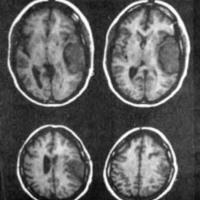 Fig. 1. Meningioma témporoparietal izquierdo.