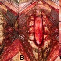 Figura 3: Se observa la secuencia desde la exposición de arco posterior de C3 a T1 (Izquierda), seguido de la laminectomía de C3 a C7 mas semilaminectomía T1 (Central), para finalmente realizar la apertura dural. La médula se encuentra ensanchada y de color grisáceo en el sitio de la lesión (Derecha).