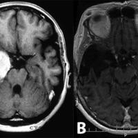 Figura 1: a) RNM pre-quirúrgica; b) RNM 20 años después de la cirugía.
