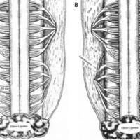 Figura 1: A-B) Esquema que muestra la atípica disposición de las raíces a nivel lumbusacro de los pacientes con disrrafismos como el mielomeningocele. A: del lado derecho se observa las raíces dorsales de L5 y S1. B: anatomosis con injerto entre raíces ventrales de L5 y cabo distal de la raíz ventral de S3 (Gentileza Dr. Xiao).