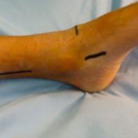 Transferencia tendinosa de tibial posterior en parálisis del nervio peróneo común: ¿El fin del pie caído?
