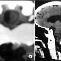 Transplante de Epiplon para Isquemia en la Medula Espinal y Oblongada
