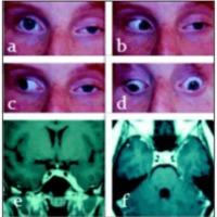 Fig. 1. a ,b, c, y d. Oftalmoplejía de ojo izquierdo. e, f. IRM de encéfalo: hiperintensidad del seno cavernoso izquierdo con aumento de su tamaño.