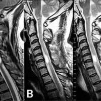 Figura 8: RMN Preoperatoria ponderada en T2 (izquierda). RMN Postoperatoria a los 6 meses, se observa resección total (central). Paciente con mejoría neurológica McCormick Ib (derecha).