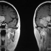 Figura 1: corte coronal de IRM con contraste.