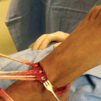 Figura 2: Exposición de los tendones blanco *Tibial anterior. †Extensor propio del hállux.  ¶Extensor común de los dedos.