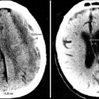 Hidrocefalia Externa del Adulto. Manejo Terapéutico y Diagnóstico Diferencial con Hematoma Subdural Crónico e Higroma Subdural