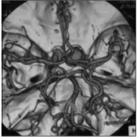 Fig. 1. ATC-3D preoperatoria, mostrando aneurismas bilaterales de ACI. Fue tratado el del lado sintomático (aneurisma gigante ACI ) derecho.