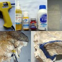 A) Abbocath y pistola con silicona azul para ilustrar senos venosos y vena yugular interna. B) Siliconas, acrílicos y pegamento vinílico utilizados. C) Guantes de látex utilizados para simular duramadre. D) Inyección de acrílico amarillo en el foramen estilomastoideo, seguido de la inserción del teflón del abbocath con el fin de recrear el nervio facial. E) Adhesión del látex a la superficie endocraneal del hueso y posterior armado del seno sigmoideo y petroso superior siguiendo sus improntas óseas. Invaginación a través del poro acústico del látex para recrear la duramadre del conducto auditivo interno.