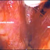 Cirugía Transnasal Endoscópica para Tumores de Hipófisis
