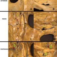 Figura 3: Ejemplos de posición del tubérculo suprameatal con respecto al meato acústico. Interno. A y B) Vista superior y frontal de tubérculo suprameatal anterior derecho; C y D) Vista superior y frontal de tubérculo suprameatal en posición medial de lado izquierdo; E y F) Vista superior y frontal de tubérculo suprameatal izquierdo en posición posterior. TMS: Tubérculo suprameatal. MAI: Meato acústico interno. FO: Foramen oval. FE: Foramen espinoso. FY: foramen yugular. AP: Ápex petroso.