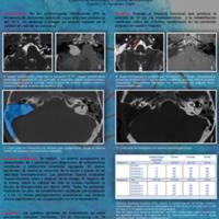 Abordaje translaberíntico y rehabilitación vestibular: eficacia en el tratamiento de la disfunción vestibular en pacientes con schwannoma vestibular