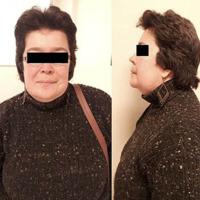 Cirugía Descompresiva Occipito-Cervical en un Adulto con Osteopetrosis y Malformacion de Chiari I