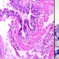 Figura 7: Pared quística con revestimiento epitelial cilíndrico ciliado y estroma fibromuscular (Izquierda). A mayor aumento, epitelio de revestimiento cilíndrico ciliado, con presencia de células caliciformes (Derecha).