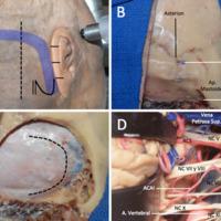 Figura 1: Abordaje retrosigmoideo paso a paso en un preparado cadavérico. A, incisión. Los reparos anatómicos profundos marcados en la superficie son: apófisis mastoides y ranura digástrica. Además, el pabellón de la oreja es dividido en 4 cuartos, ubicándose el borde inferior del seno transverso en la unión del primer con el segundo cuarto. B, disección subperióstica. Los reparos anatómicos a nivel del plano óseo son: asterion, apófisis mastoides y ranura digástrica. Además se puede observar el orificio de la vena emisaria mastoidea. C, luego de la craniectomía, la duramadre ha sido expuesta. En línea punteada está representada la apertura dural, la cual sigue los márgenes internos de los senos transverso y sigmoides. D, vista anatómica de la región del ángulo pontocerebeloso, desde la vena petrosa superior por arriba hasta la arteria vertebral por debajo. Se pueden apreciar los nervios craneanos V, VI, VII, VIII, IX, X y XI.