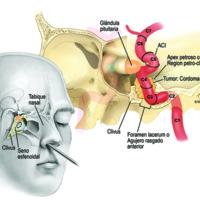 Figura 1: Tumor de la región petro-clival: corte coronal muestra la Arteria Carótida interna con sus diferentes segmentos, según Bouthillier, y su relación con el tumor (Retrocarotidea paraclival izquierda). Obsérvese la relación de la lesión con las estructuras anatómicas normales de seno esfenoidal. Corte sagital muestra una visión panorámica de la dirección de trabajo del endoscopio. Hay un mayor ángulo de trabajo ingresando por la narina derecha ya que la lesión se encuentra en la región petro-clival izquierda.