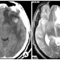 Vasculitis cerebral primaria seudotumoral. Reporte de un caso y revisión de la literatura