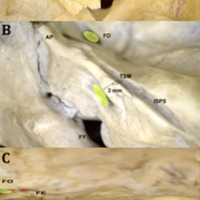 Figura 4: Ejemplo de clasificación de tubérculo suprameatal por su diametro.<br /> Clasificación de tubérculo suprameatal por la dimensión A: Tipo I 0-1 mm; B: Tipo 2 2-3 mm y C: TIpo III mayor de 3 mm. TSM: Tubérculo suprameatal. MAI: Meato acústico interno. FO: Foramen oval. FE: Foramen espinoso. FY: foramen yugular. ISPS: Impresión de seno petroso superior. AP: Ápex petroso.