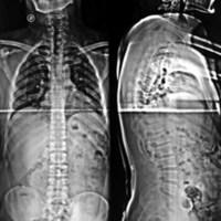 Figura 2: Espinograma coronal y sagital normal, tampoco se observa anomalías óseas de la columna vertebral.