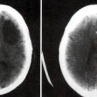 Fig . 1. TAC de cráneo: lesión quística hipodensafrontal izquierda con efecto de masa.