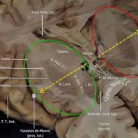 "Anatomia Microquirúrgica y Abordajes al Central Core Cerebral<br /><br /> Premio Junior ""Dr. Jorge Shilton"", Neuropinamar 2018"